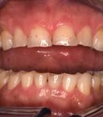 Desgaste dental consecuencia del bruxismo