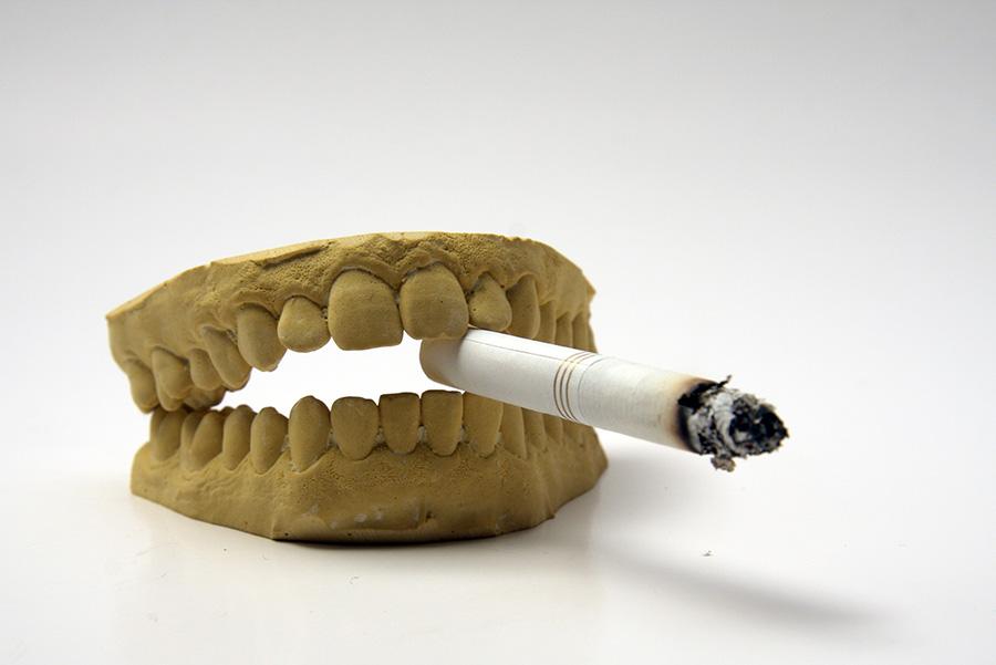 Tabaco e implantes dentales: una relación poco recomendable