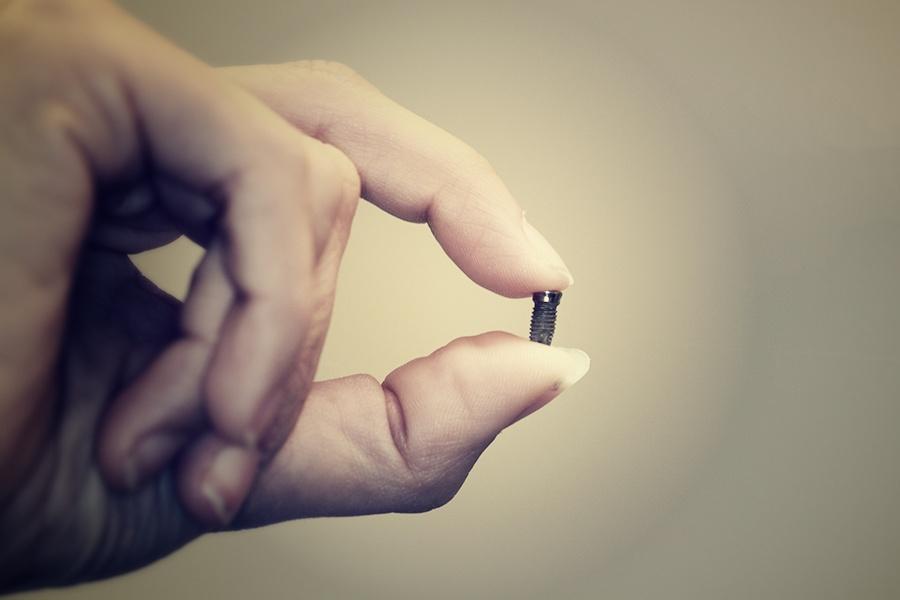 ¿Los implantes dentales duran toda la vida?