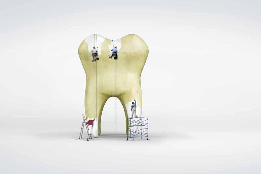Claves para un blanqueamiento dental sin riesgos
