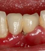 Efectos de la periimplantitis en los implantes