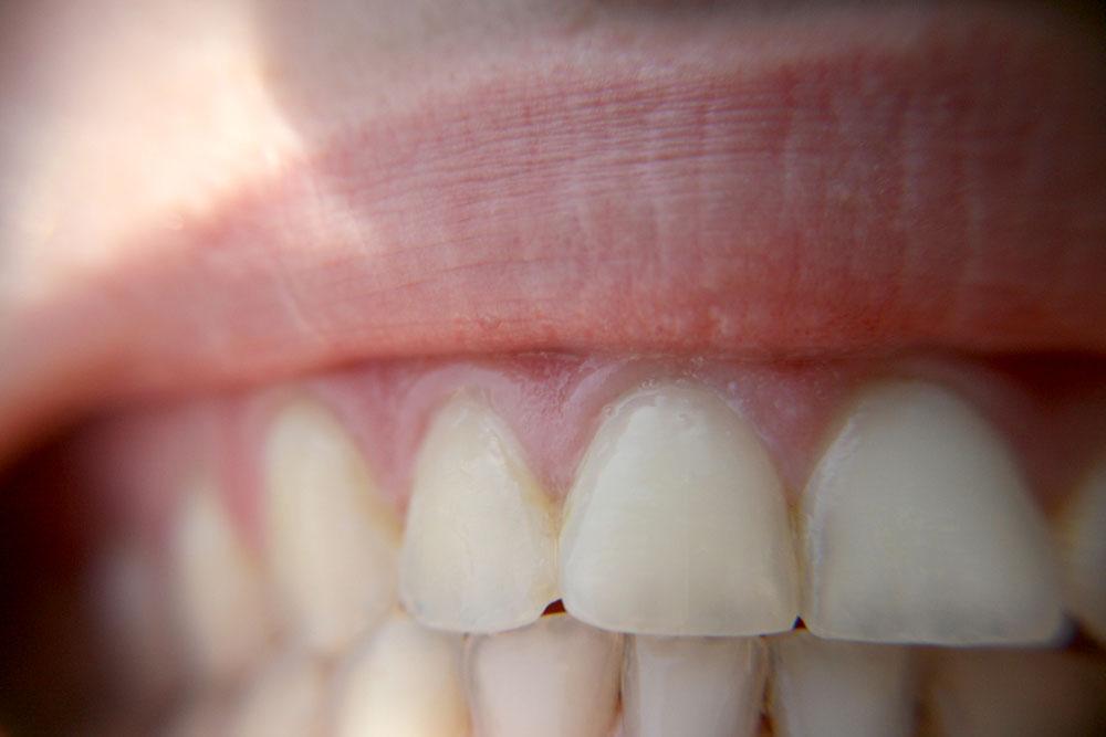 Bruxismo: Cómo saber si aprieto los dientes