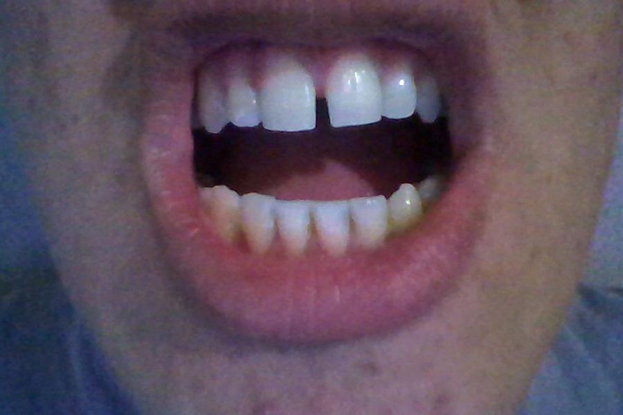 ¿Puedo quitarme el diastema con ortodoncia?