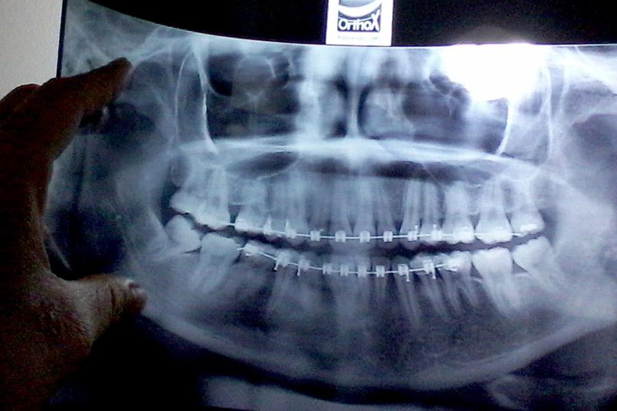 Reabsorción radicular: ¿Puedo continuar con la ortodoncia?
