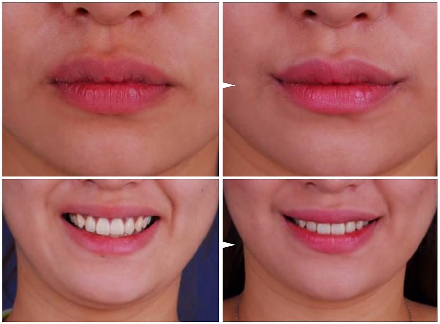 Seis modas dentales que ningún 'fashion victim' debería seguir